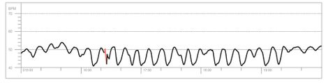 My Heart Rate when I am in Coherence